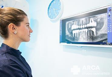 Implantologia, trattamento proposto da Studio Dentistico Arca